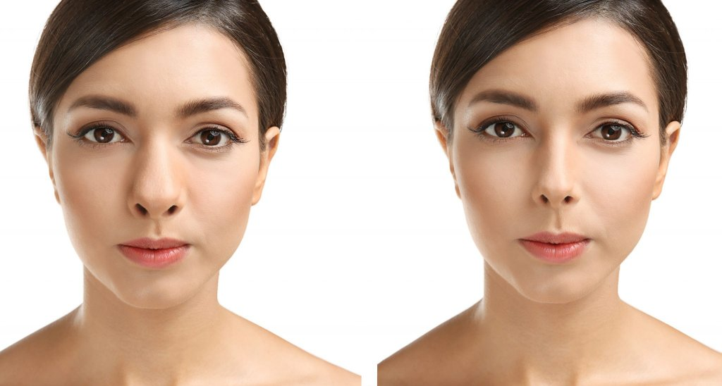 Young woman before and after rhinoplasty