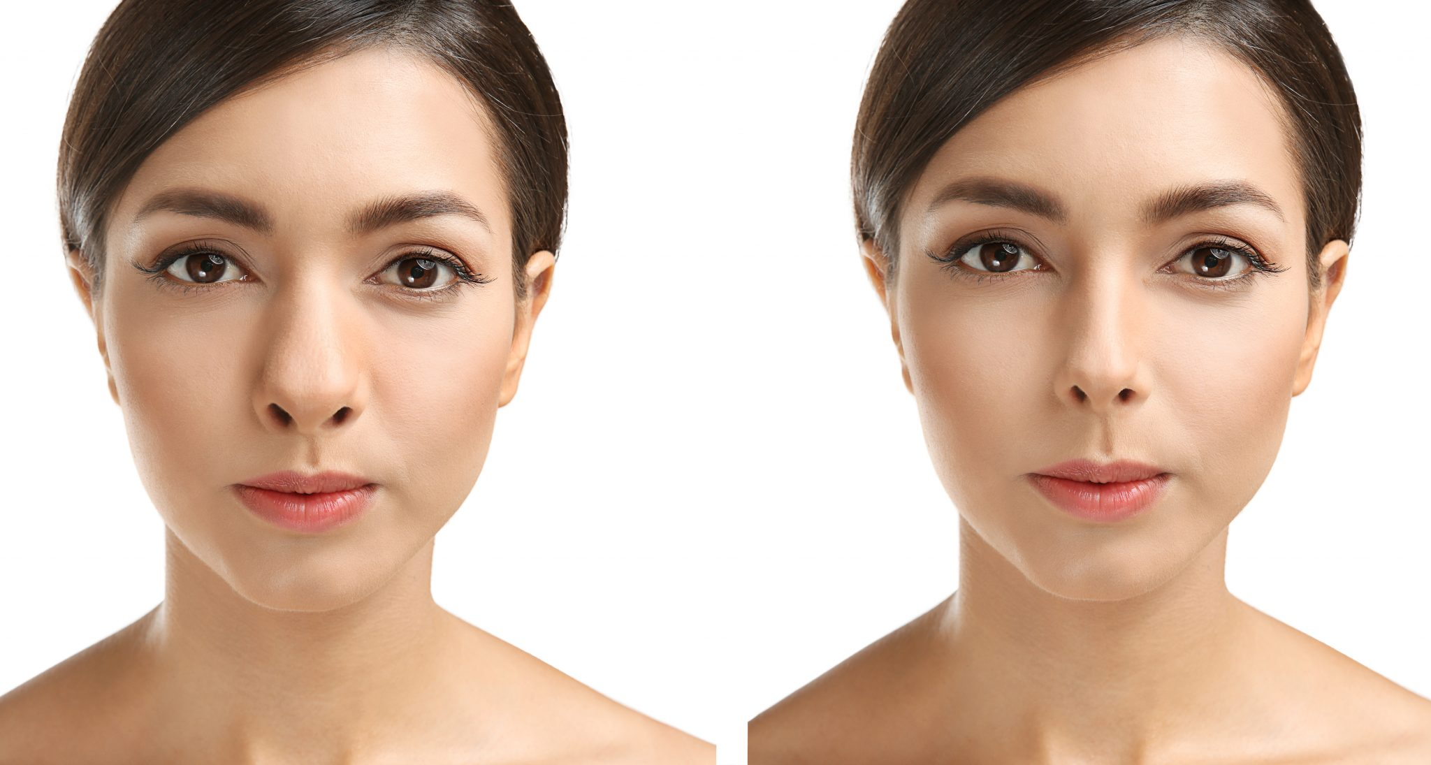 Young woman before and after rhinoplasty.