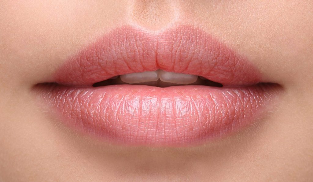 before and after lip augmentation Virginia 1a