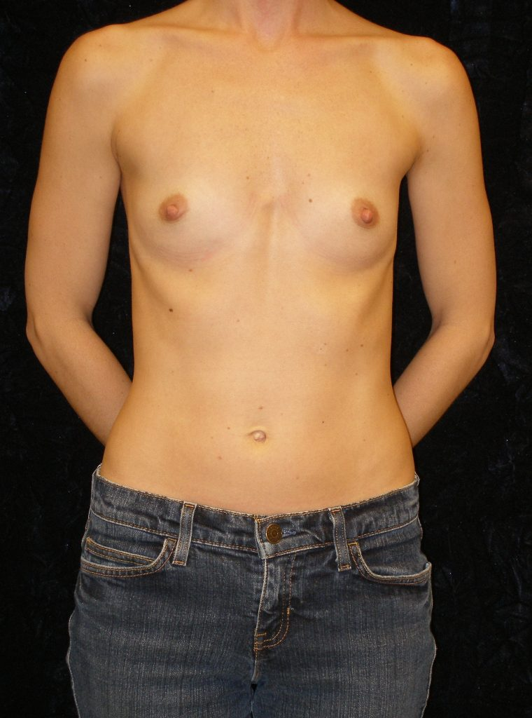 small breasts before augmentation surgery