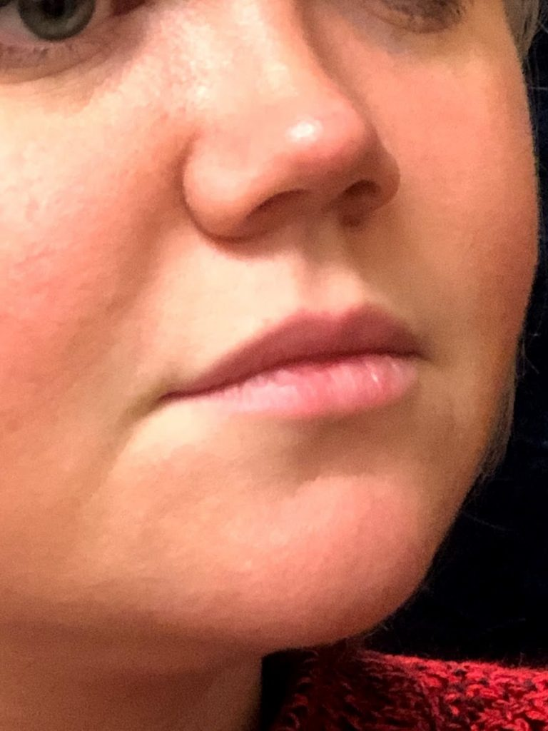 Before Lip Augmentation (oblique close up)