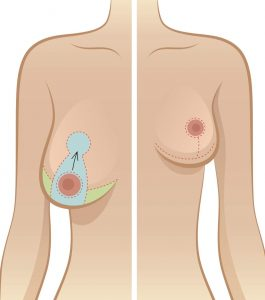 a large breast is overlaid by an arrow pointing to where it should be corrected to go to while a small breast looks nice