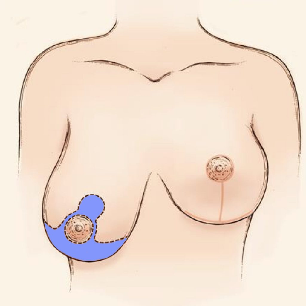 anchor incision breast reduction