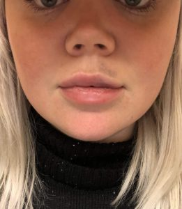 2 days after lip augmentation