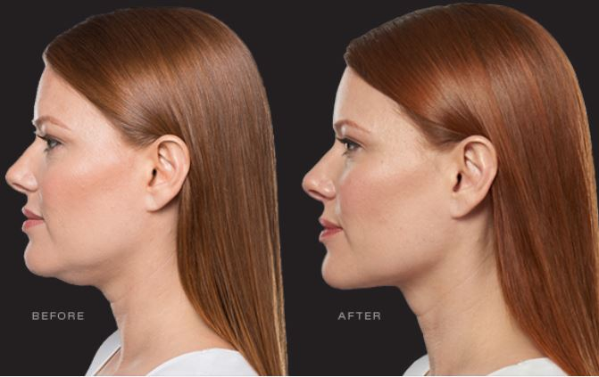 KYBELLA Before and After Chin Sculpting