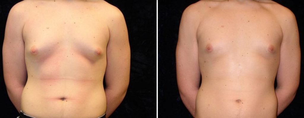 liposuction-review-photo-aesthetica-dr-chang