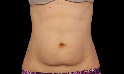 Before coolsculpting abdomen