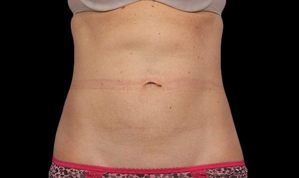 After coolsculpting abdomen