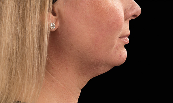 Neck Fat Removal coolsculpting