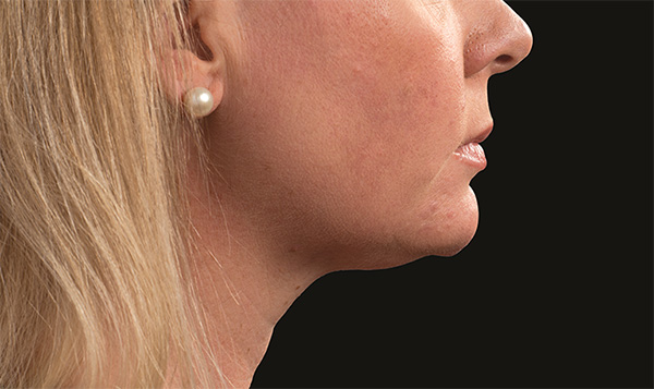 After coolsculpting neck