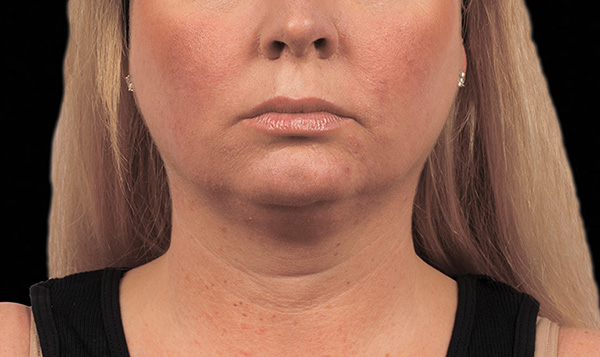 after neck coolsculpting virginia