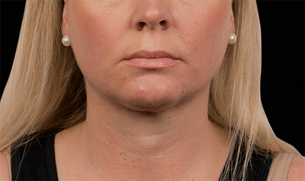 before neck coolsculpting virginia