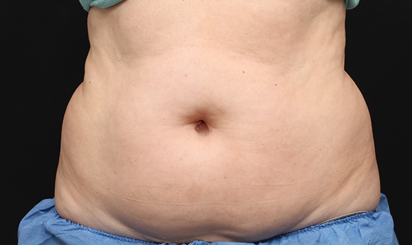Fat removal before