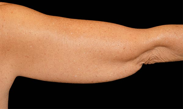 Before coolsculpting arm