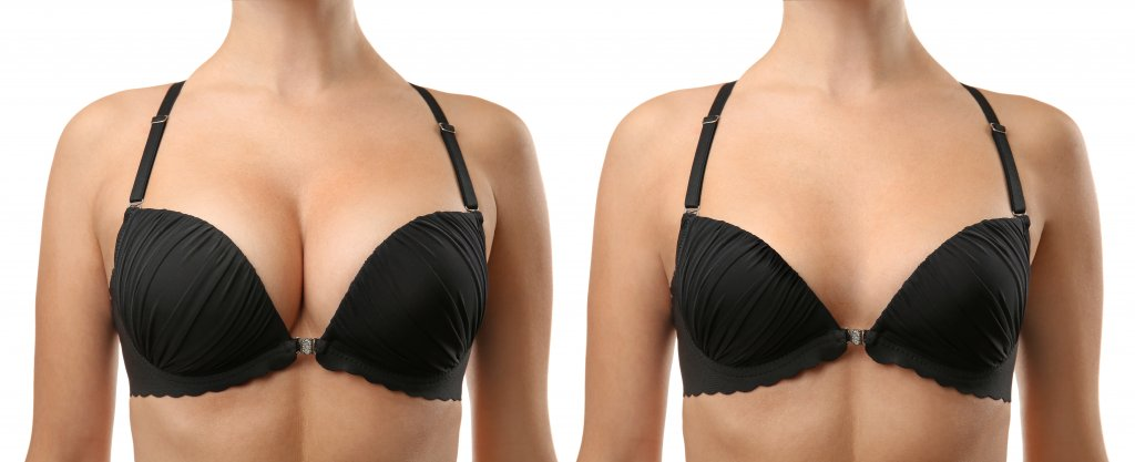 Woman before and after breast size correction on white background. Plastic surgery concept