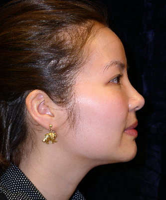 Before Nonsurgical Rhinoplasty Virginia