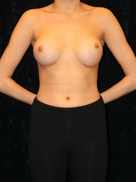 After Breast Augmentation NOVA