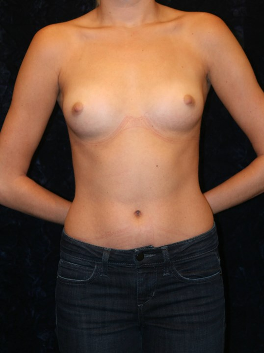 Before Breast Augmentation NOVA