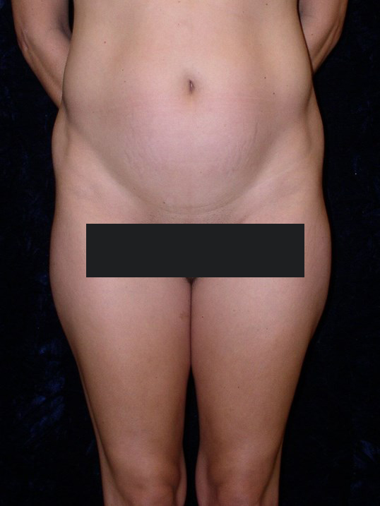 Before Liposuction Waist Thighs