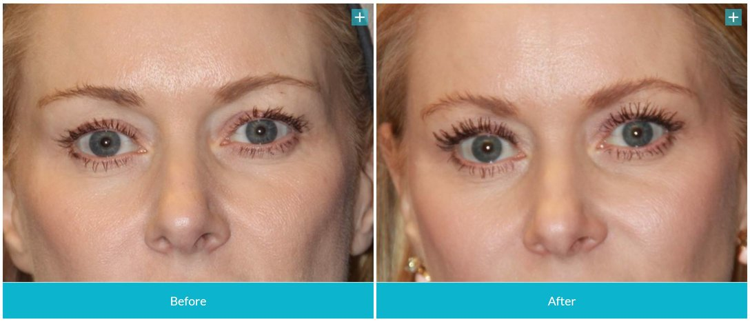 rsz_botox_before_and_after