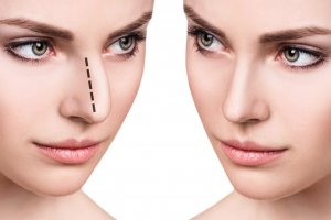 Female face before and after cosmetic nose surgery. Isolated on white.